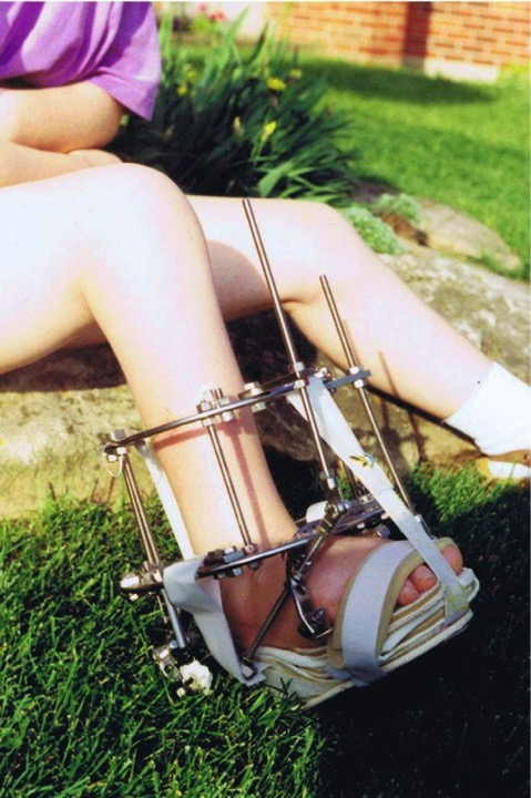 The author at age 13 with the Ilizarov External Fixator on her foot, just a few days before the device was finally removed.